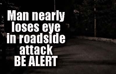 Man roadside attack