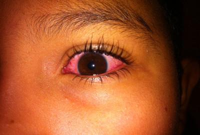pink_eye_5